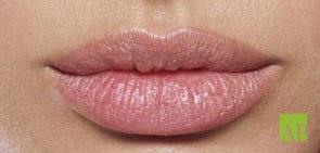 Lippenmodellierung